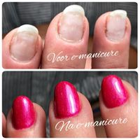 VOOR & NA E-MANICURE